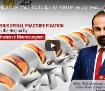 Percutaneous Spinal Fracture Fixation